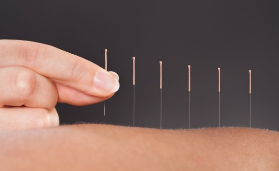 acupuncture london ontario