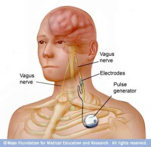 medical stimulation of vagus nerve